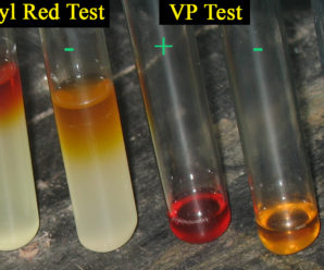 How is IMViC Biochemical test performed ?